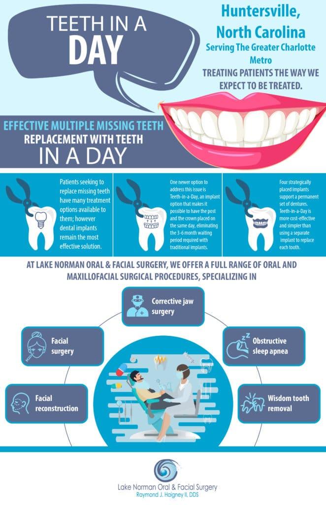 Teeth in a Day Huntersville NC